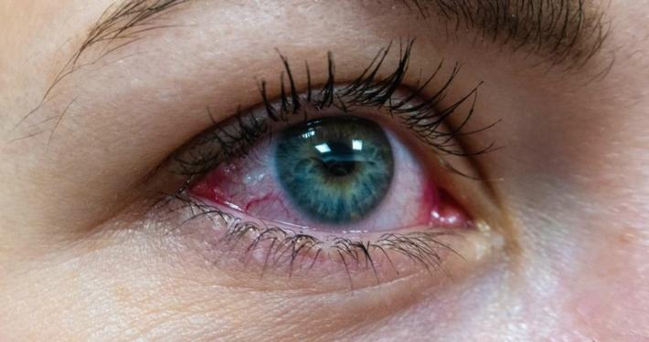 Congiuntivite allergica